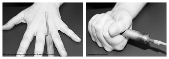 Come si svolge una sessione di Dermoriflessologia ® (parte 3).